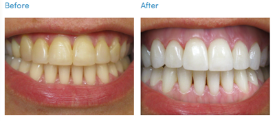 Teeth Whitening Midway Family Dental Center