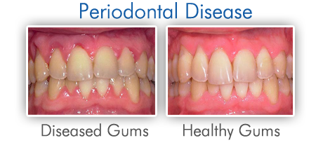 Periodontal / Gum Disease - Midway Family Dental Center