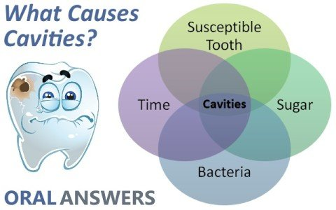 Cavity Causers - Midway Dental Center