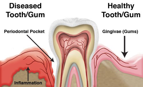 Periodontal-Disease---Midway-Dental-Center