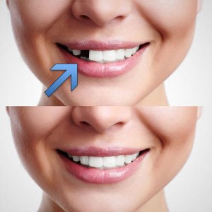 Dental-Tooth-Replacement-Options-Midway-Dental-Center