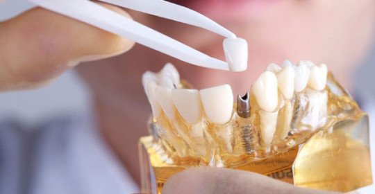 dental-implants-at-midway-dental-center