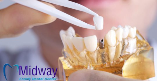 What You Need to Know About Whether Dental Implants Are Painful