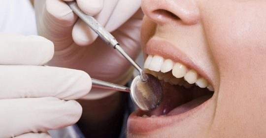 Hidden Consequences of Losing your Teeth