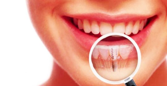 Dental Implant Recovery Process Facts