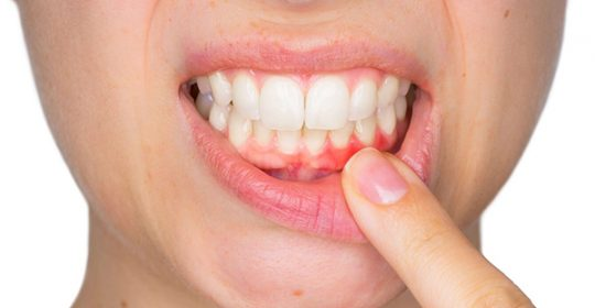 Bleeding Gums: Causes and Treatments